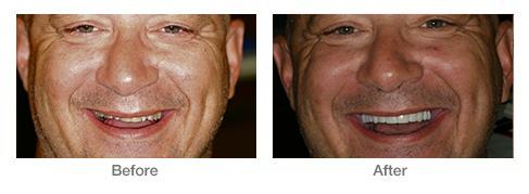 ba-face1